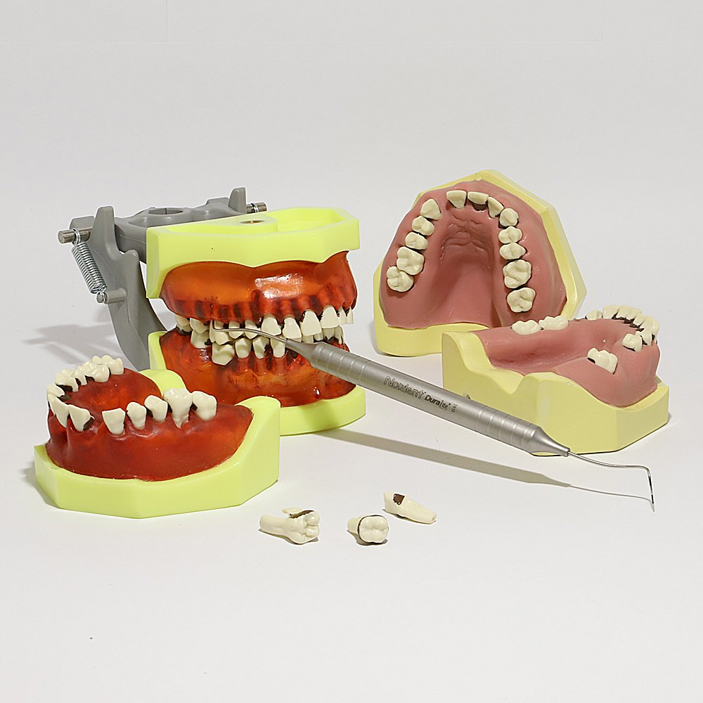 1948 Periodontic Models