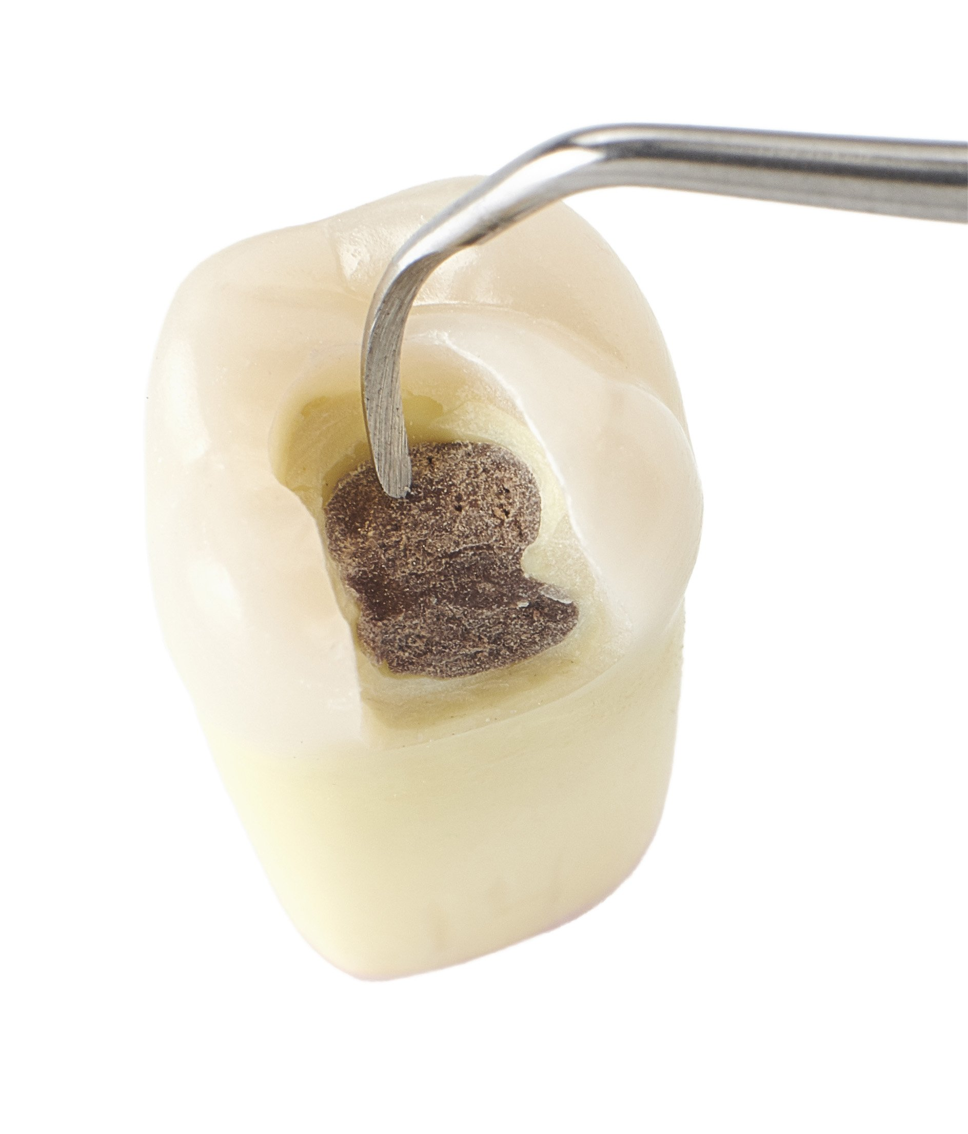 Caries simulated teeth now more realistic (for better training)