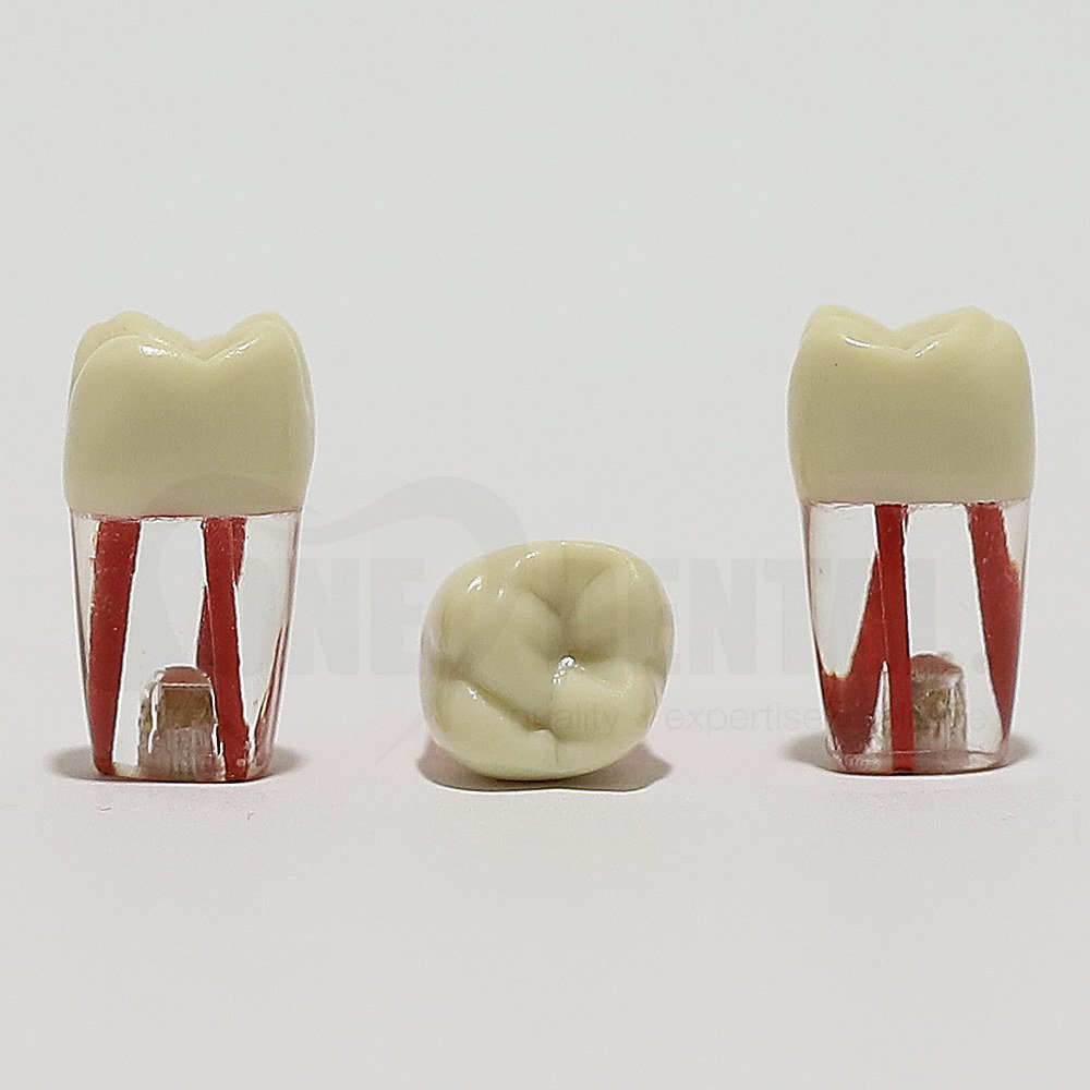 Endo Tooth 26 (3 Canals) for ADC Model