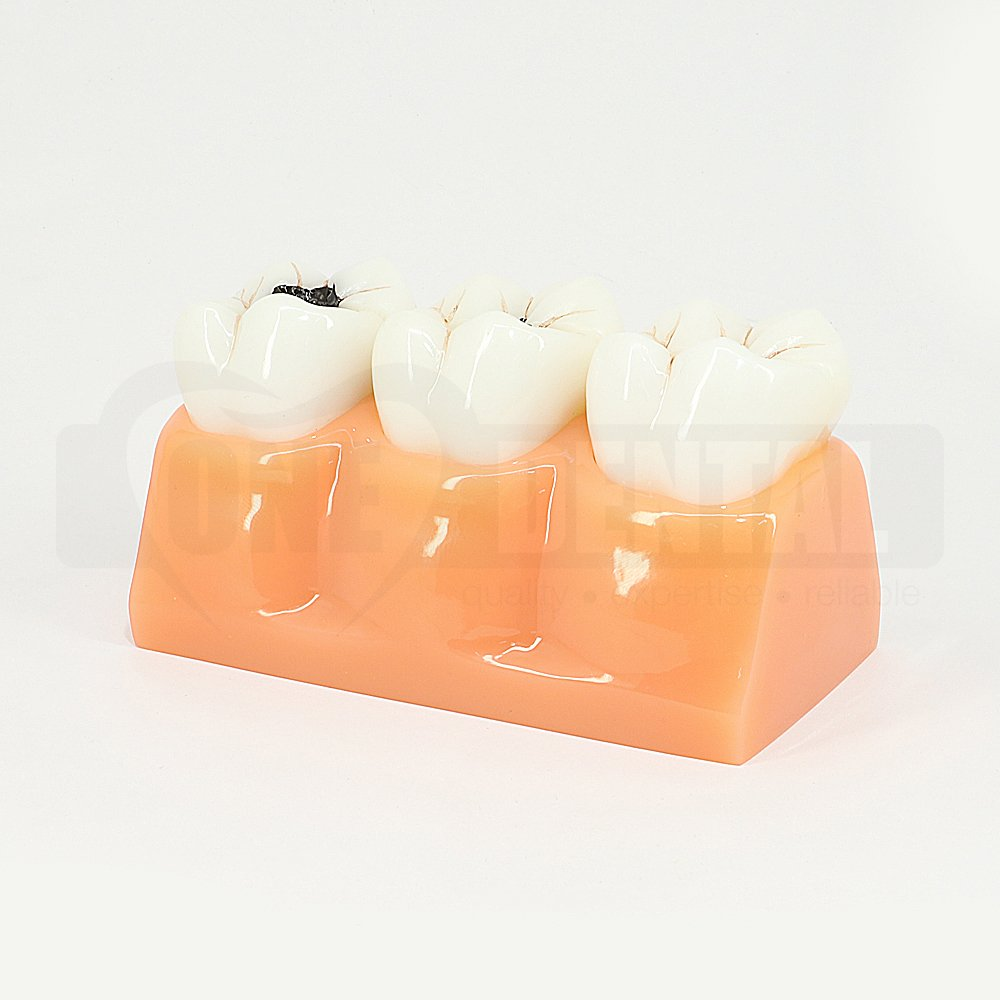 4 Times Size Staged Caries Model