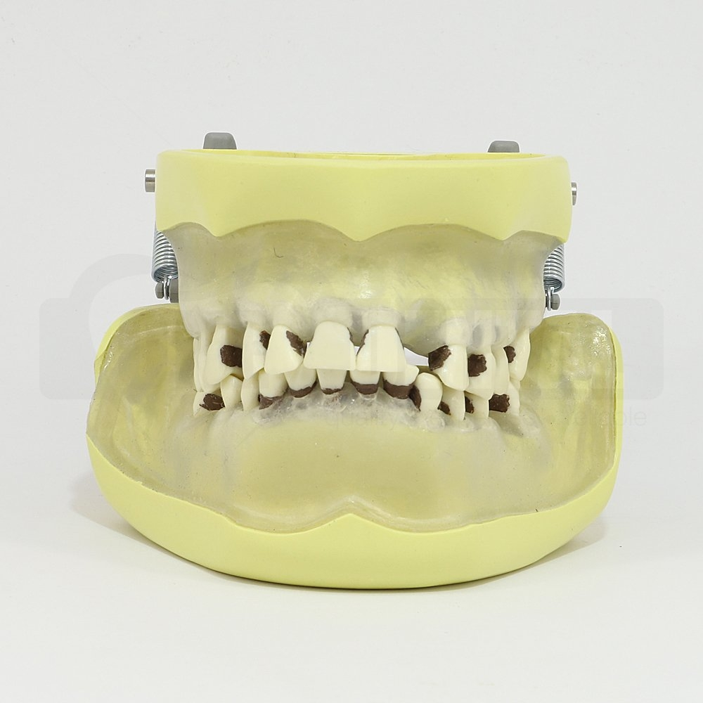 Adult Clear Gingiave Model for Perio & Extraction MQD (Bone)