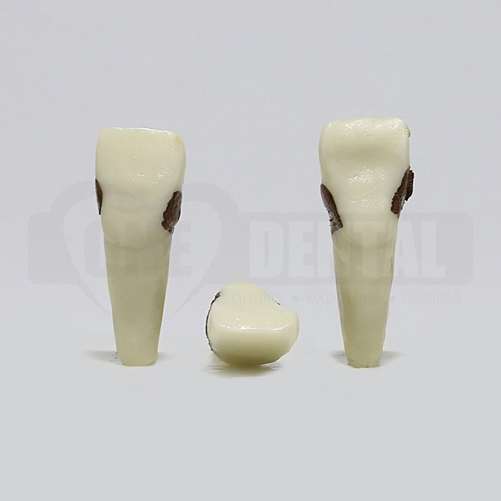 Periodontic Tooth 11
