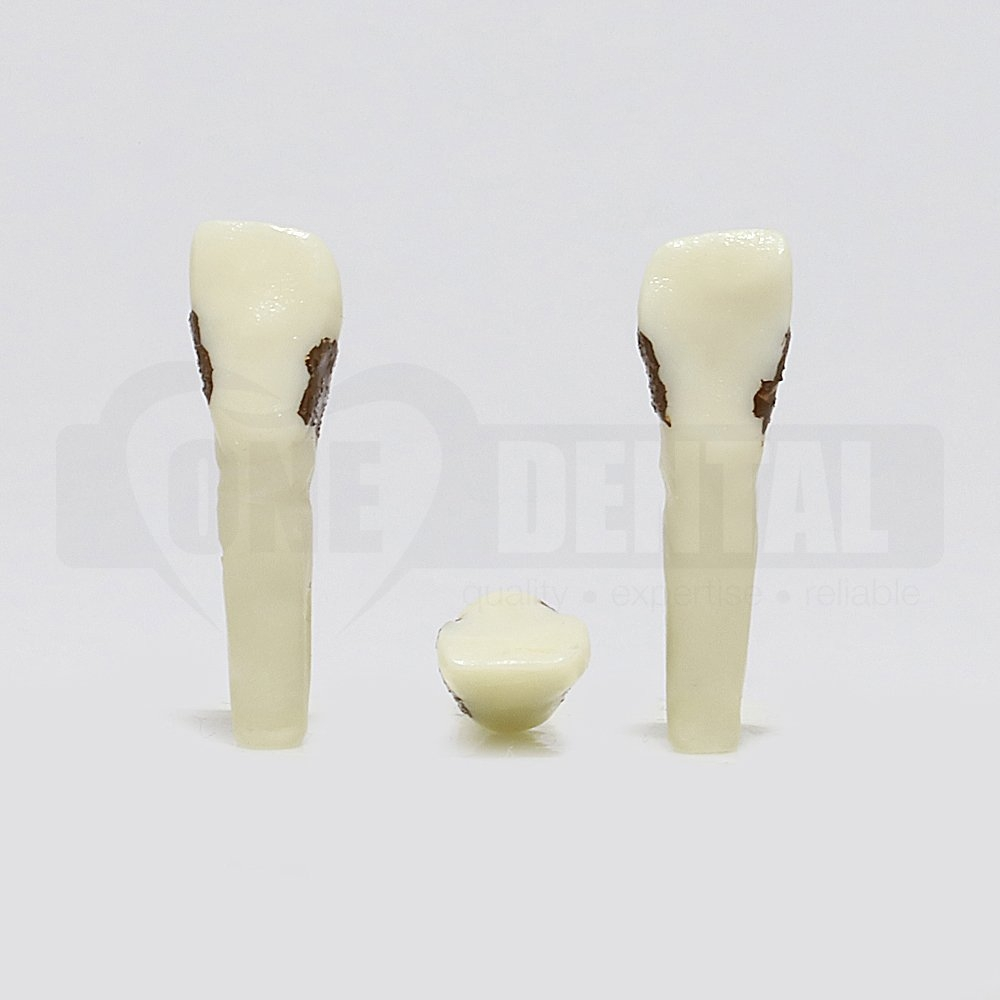 Periodontic Tooth 12