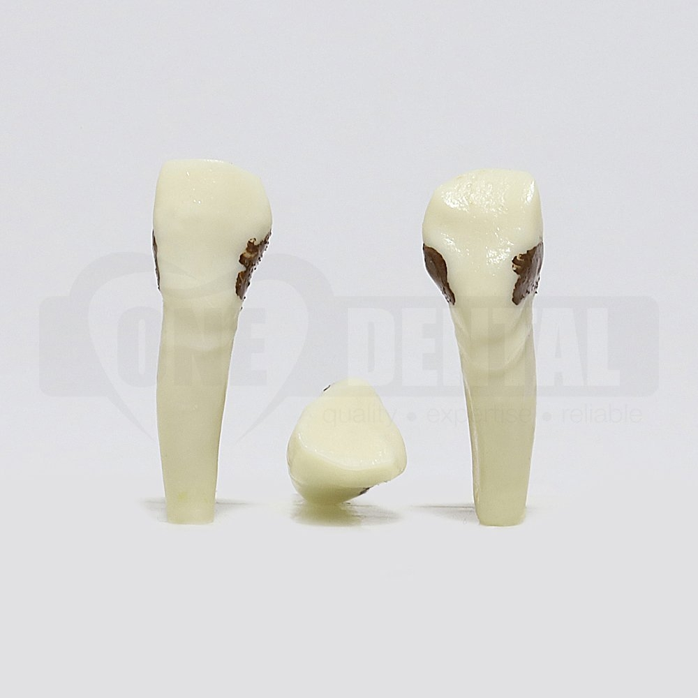 Periodontic Tooth 13