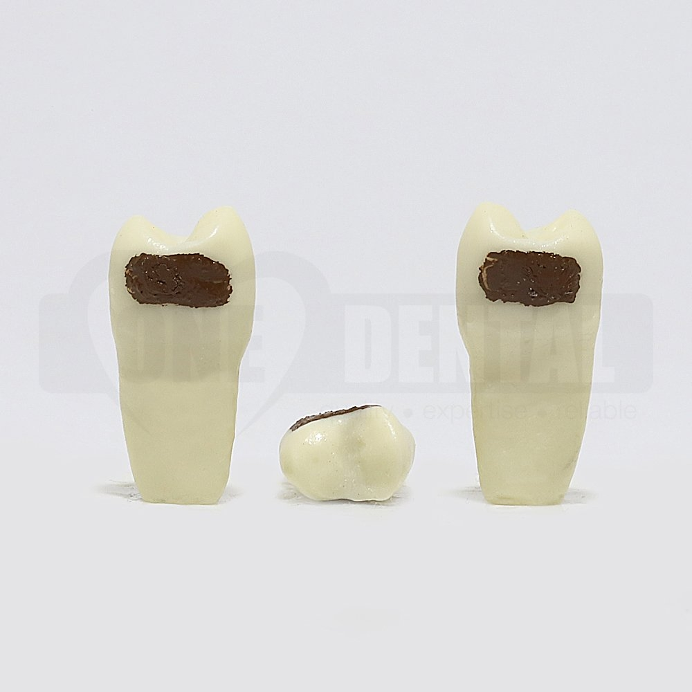 Periodontic Tooth 15