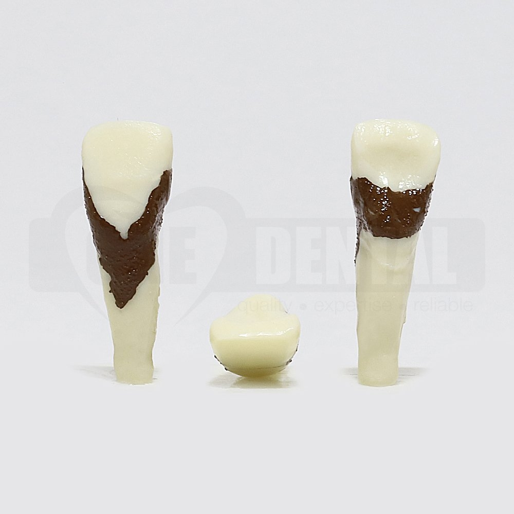 Periodontic Tooth 21