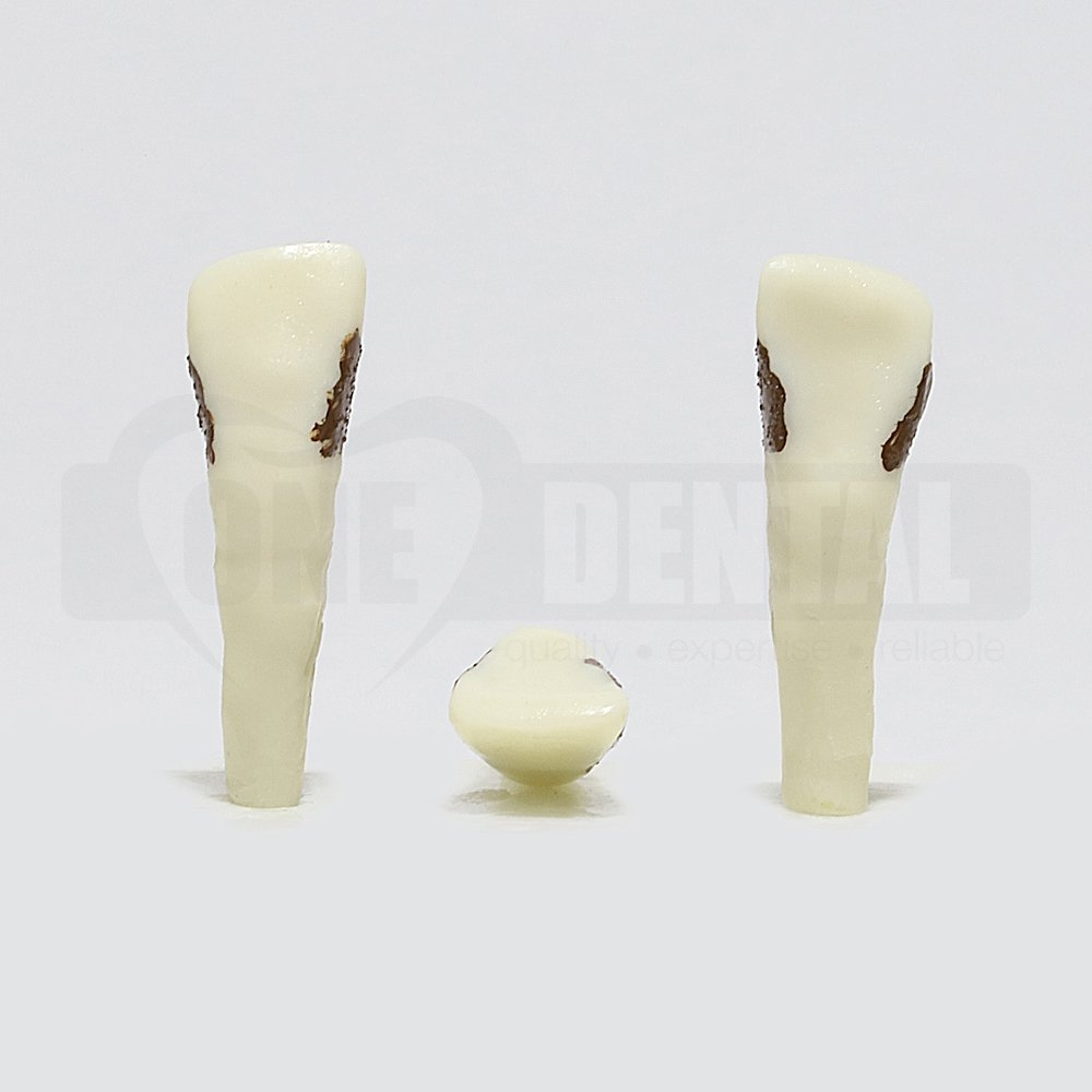 Periodontic Tooth 22