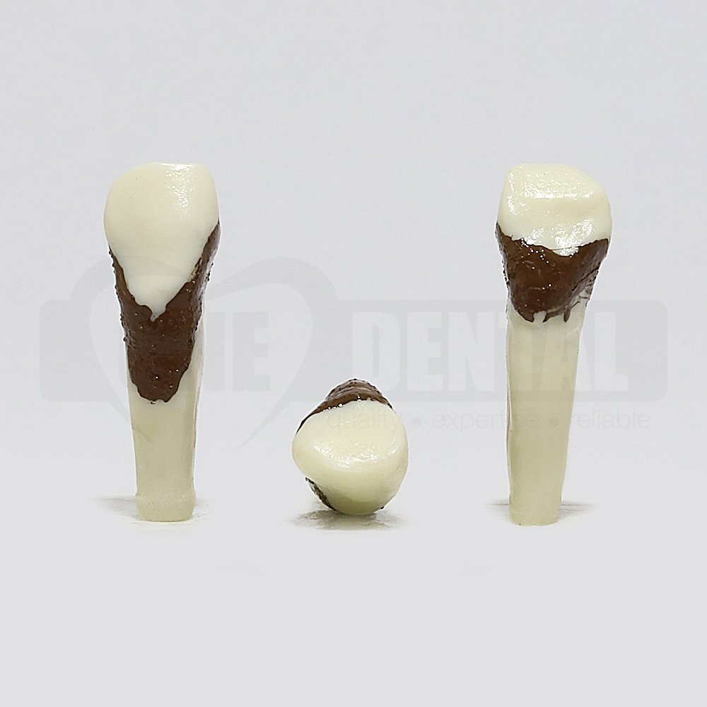 Periodontic Tooth 23