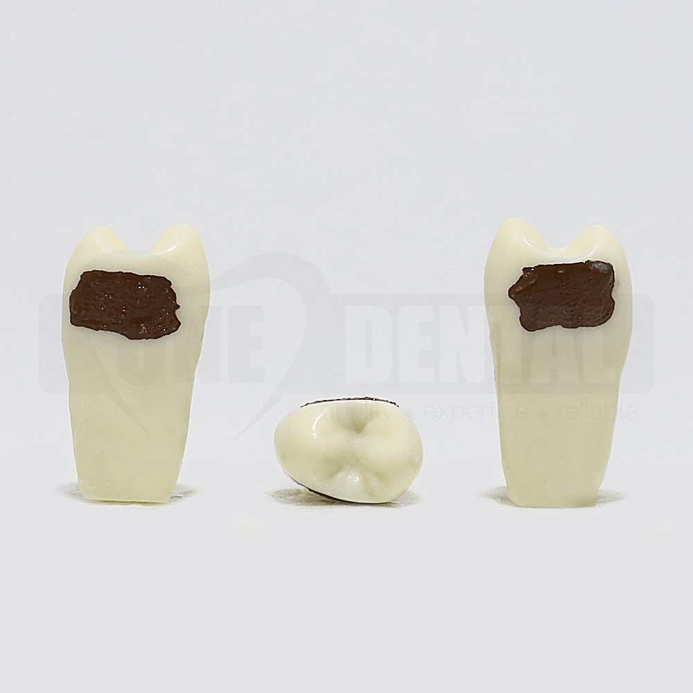 Periodontic Tooth 25