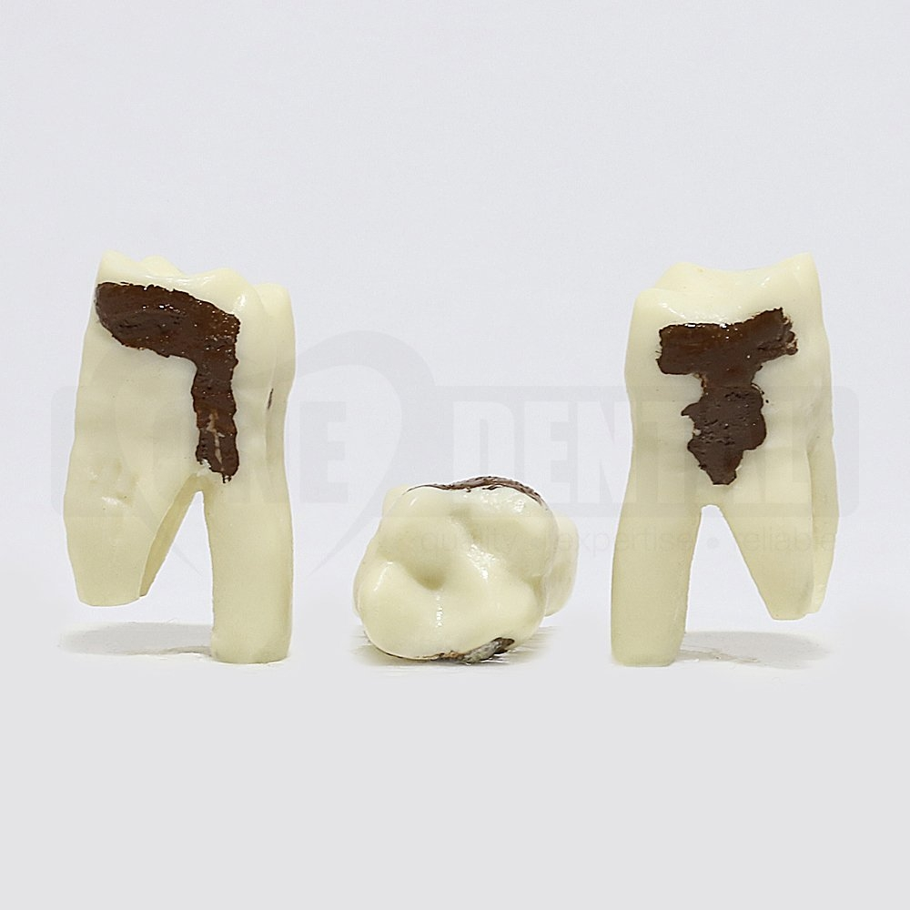 Periodontic Tooth 26