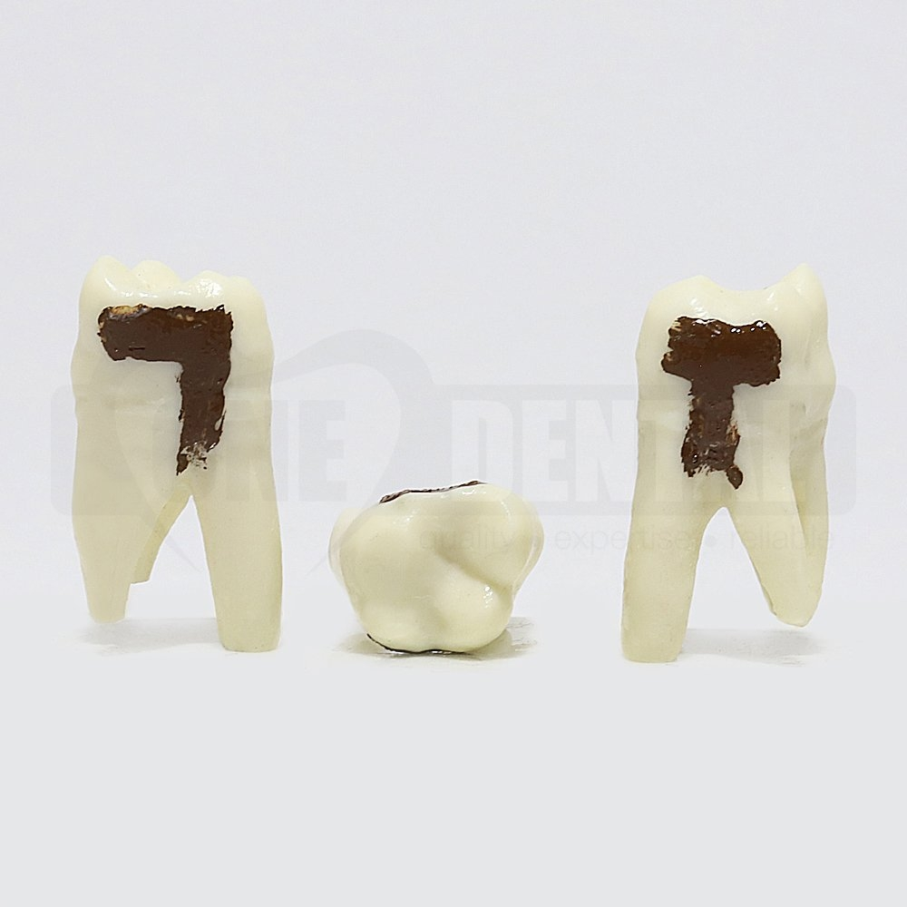 Periodontic Tooth 27