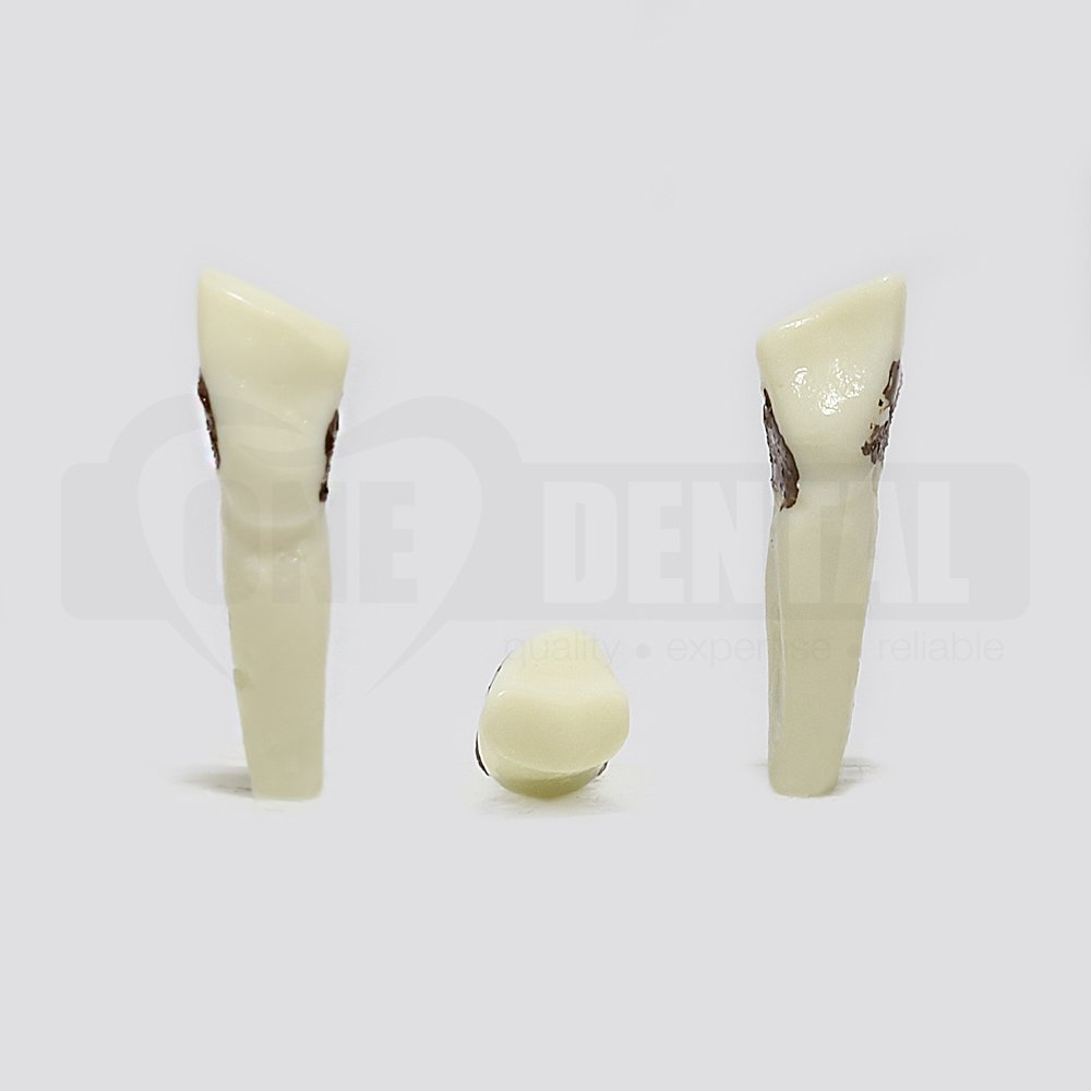 Periodontic Tooth 33