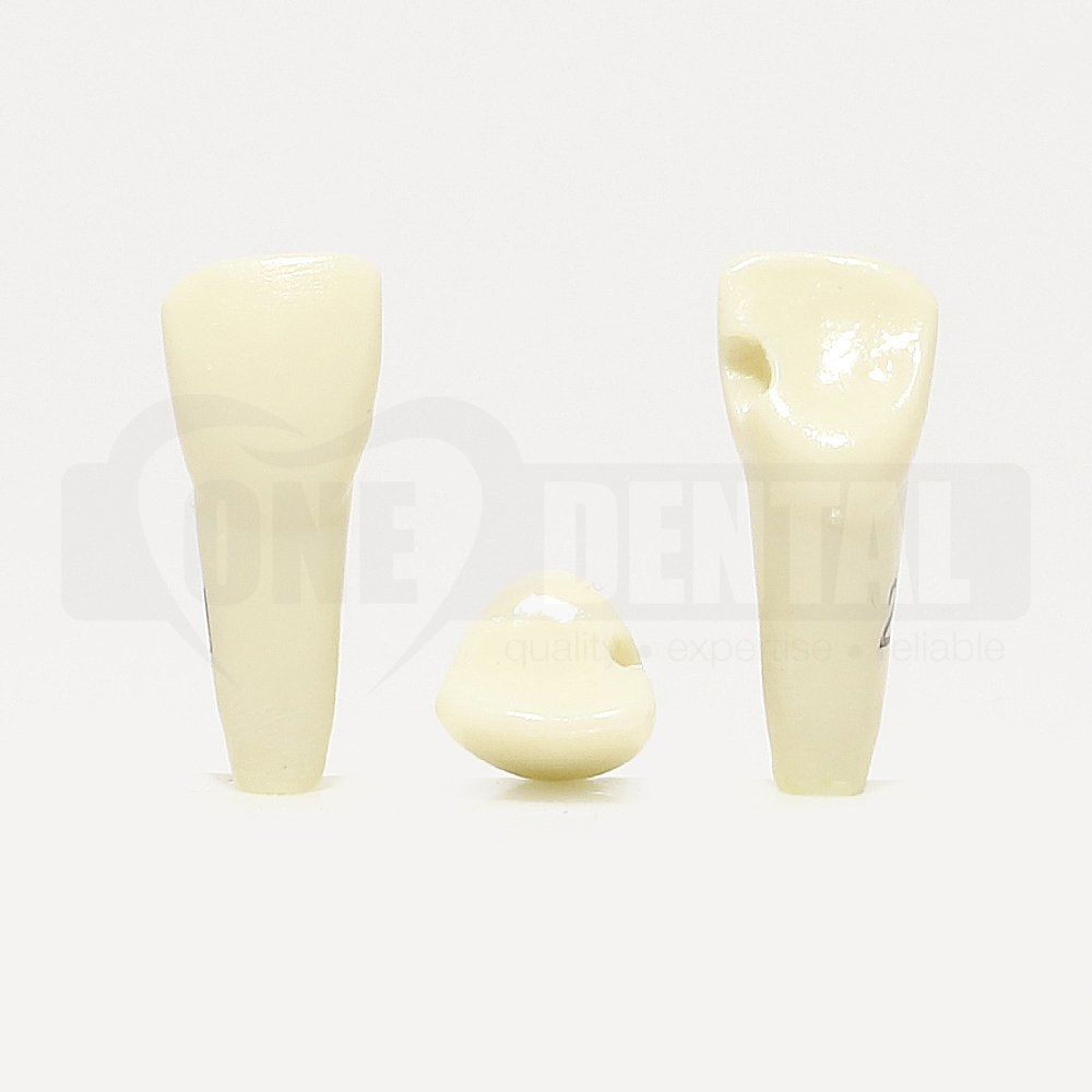 Prep Tooth 21 Mesial CL III GW for Paedo Model 1971
