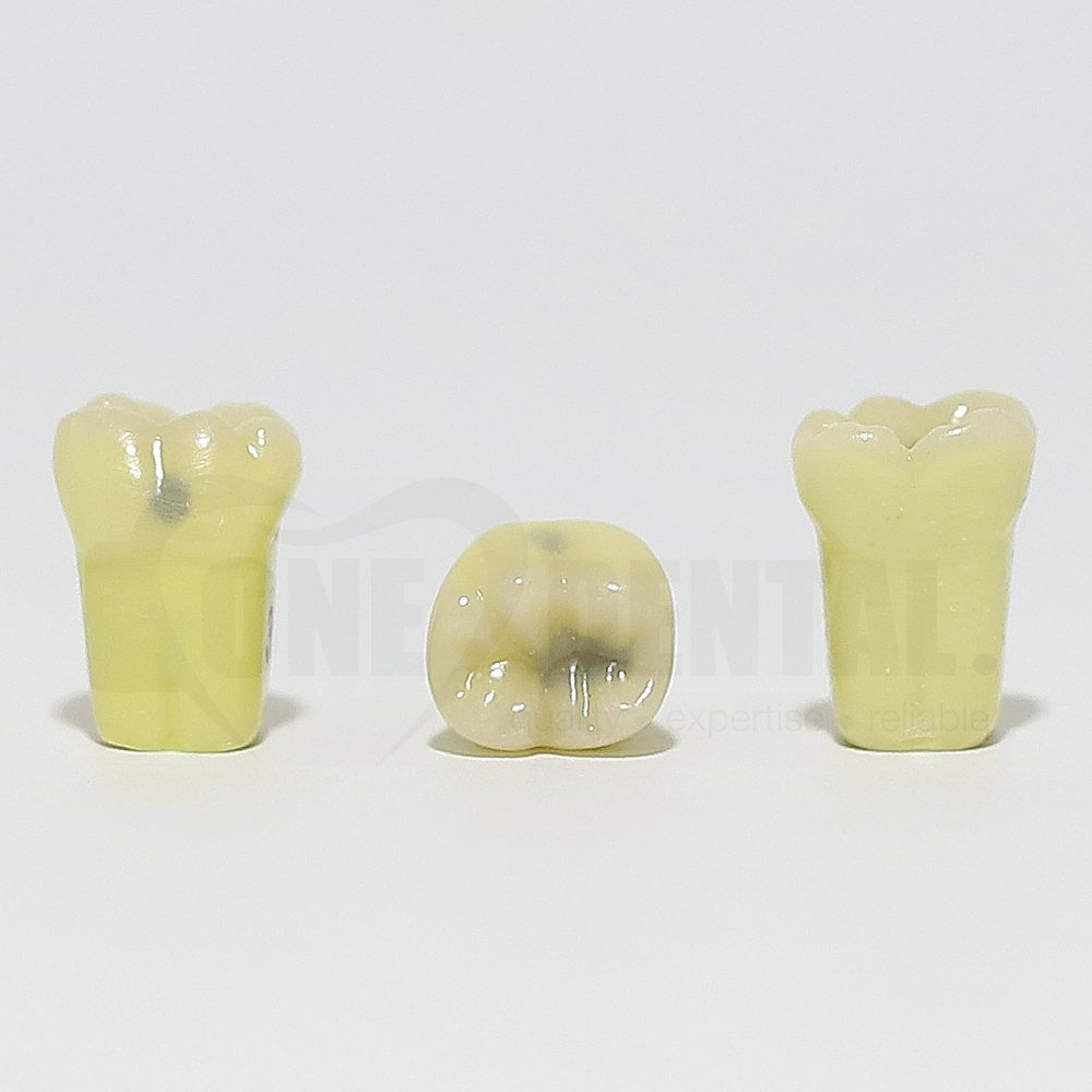 Caries Tooth 36 MOB