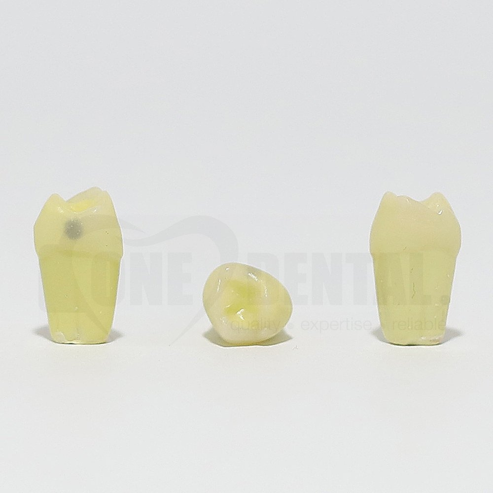 Caries Tooth 54 Mesial