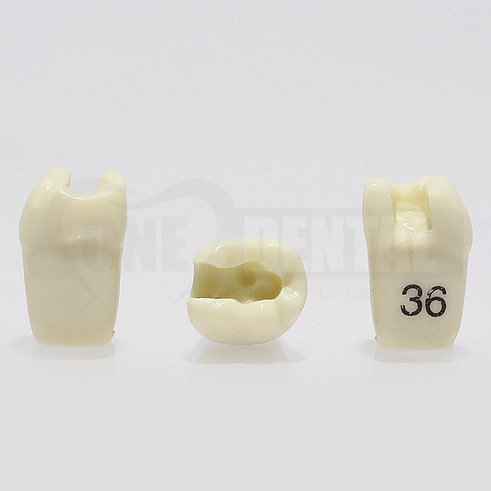 Prep Tooth 36MO GW for 1974 Paedo Model