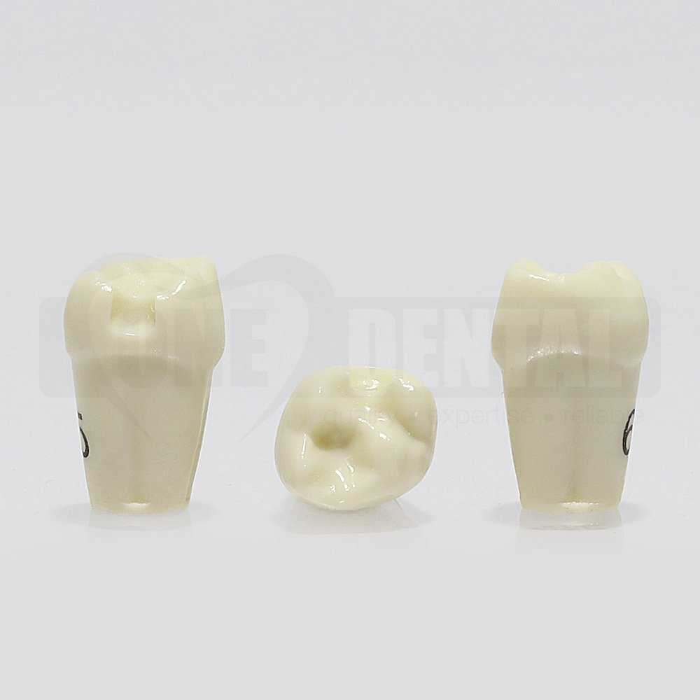 Prep Tooth 65M GW for 1974 Paedo Model