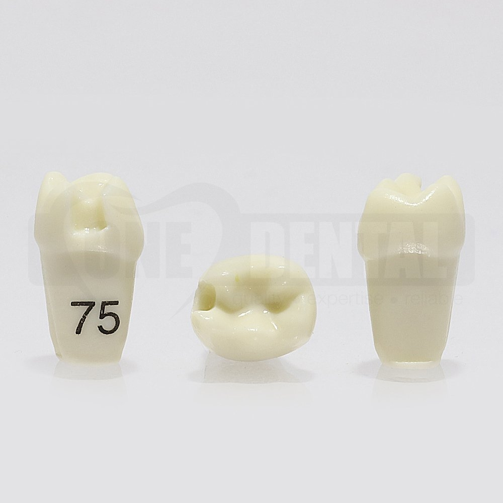 Prep Tooth 75M GW for 1974 Paedo Model