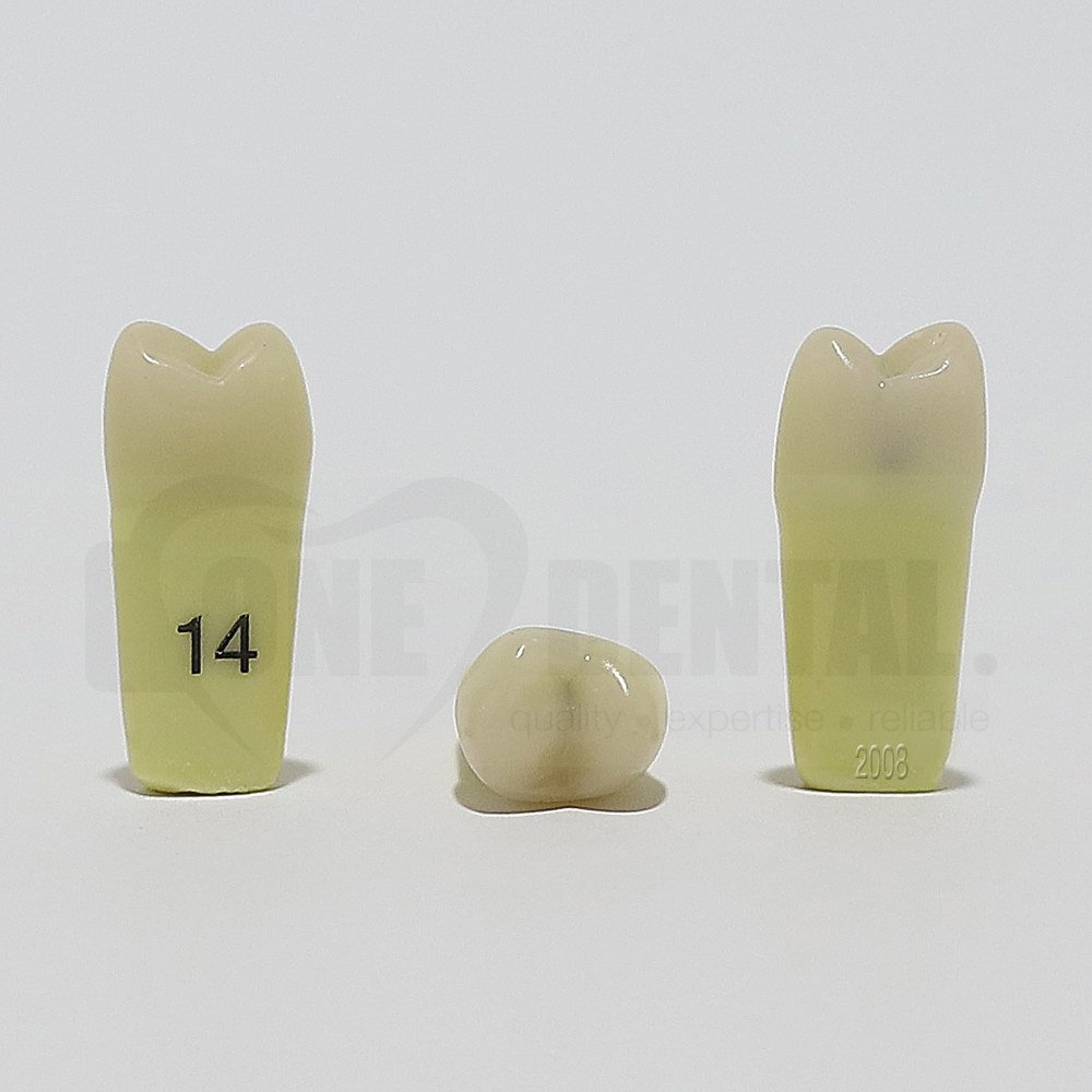 Caries Tooth 14MO