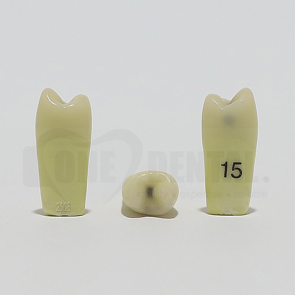 Caries Tooth 15MO for 2008 Adult Model