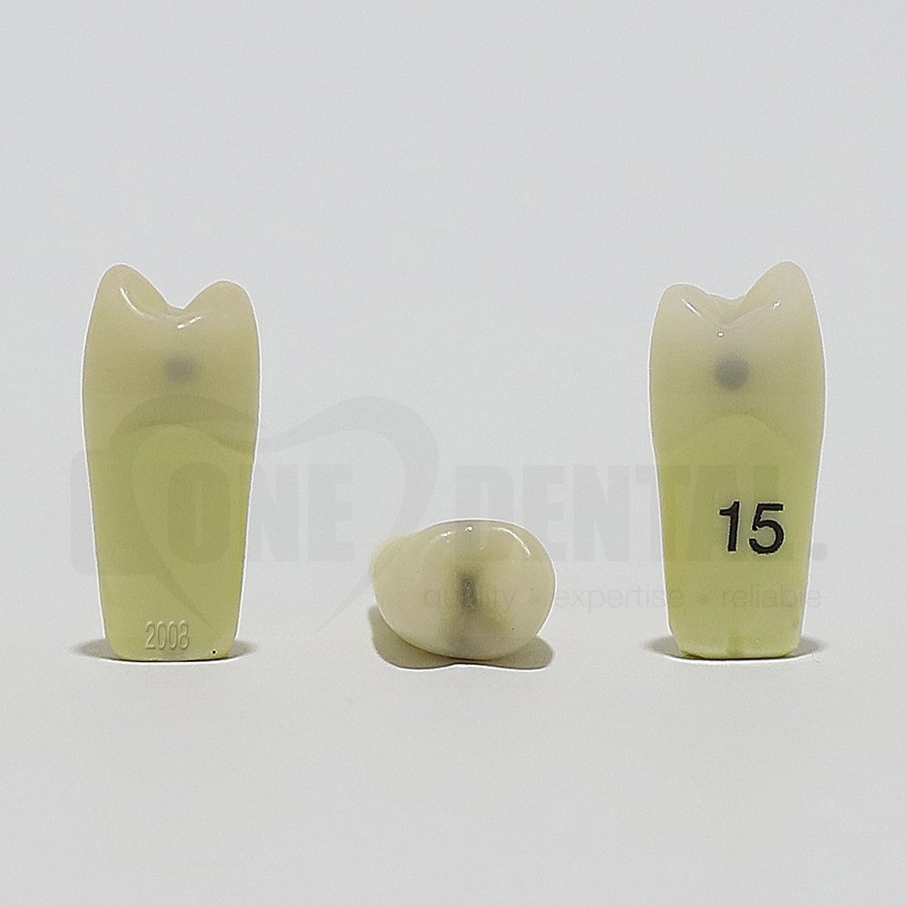 Caries Tooth 15MOD for 2008 Adult Model