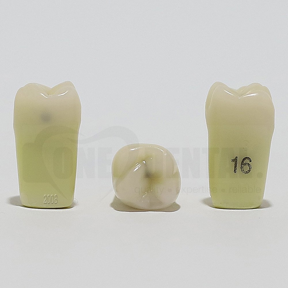 Caries Tooth 16MO