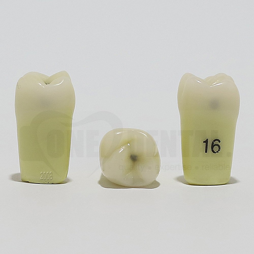 Caries Tooth 16MOD for 2008 Adult Model