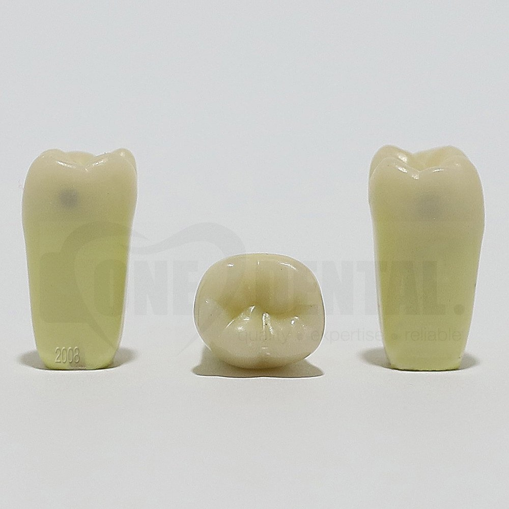 Caries Tooth 46 MD