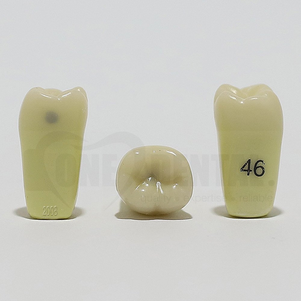 Caries Tooth 46MO Small