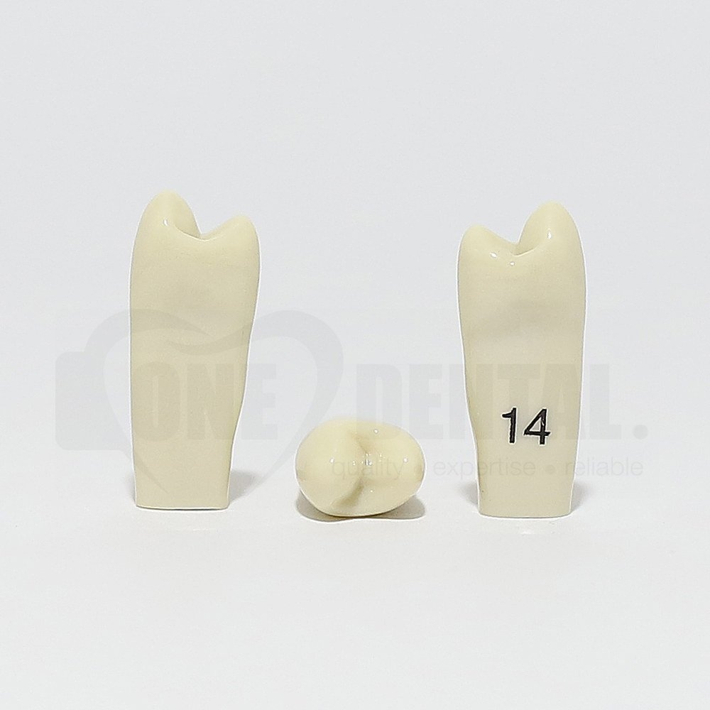 Tooth 14 for 2010 Adult Model
