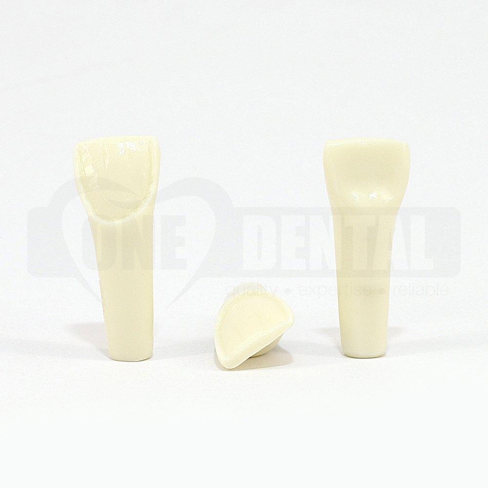 Prep Tooth 21 Veneer for 2010 Adult Model