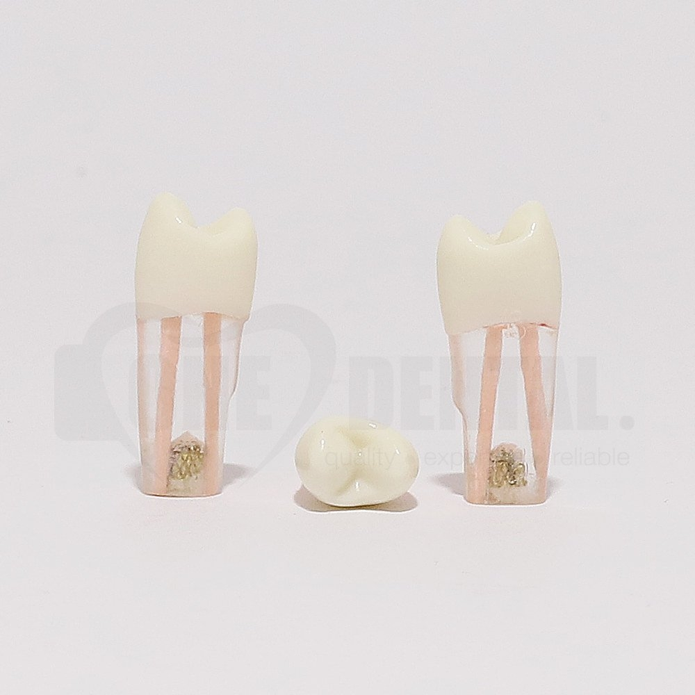 Tooth 25 Gutta Percha Filled for Post & Core with Crown for 2010 Adult Model
