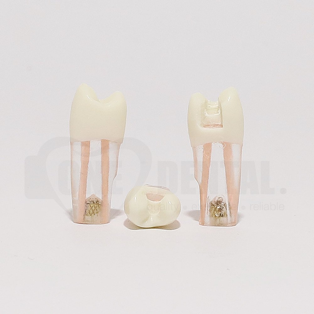Tooth 25 Gutta Percha Filled for Post & Core with DO Cavity