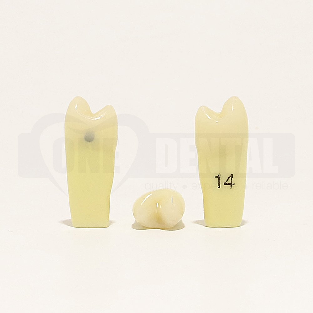 Caries tooth 14D for 2010 Adult Model