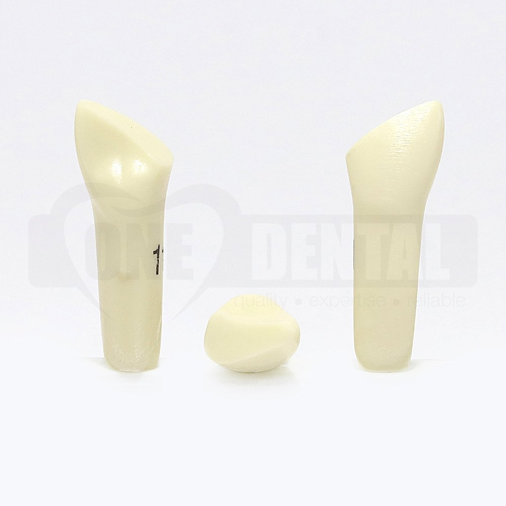 Prep Tooth 11 M FRAC RB for 2010 Adult Model