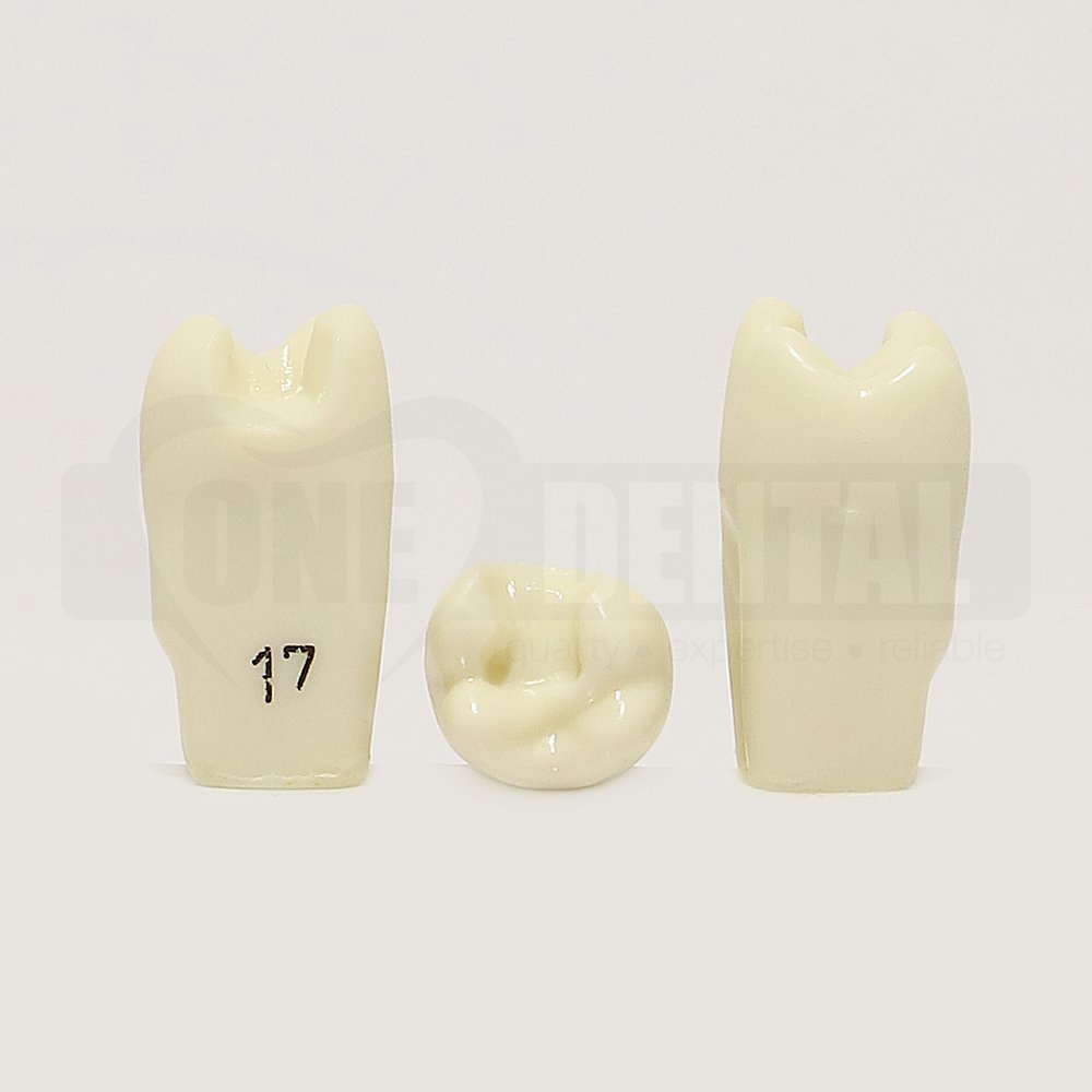 Prep Tooth 17MO RE