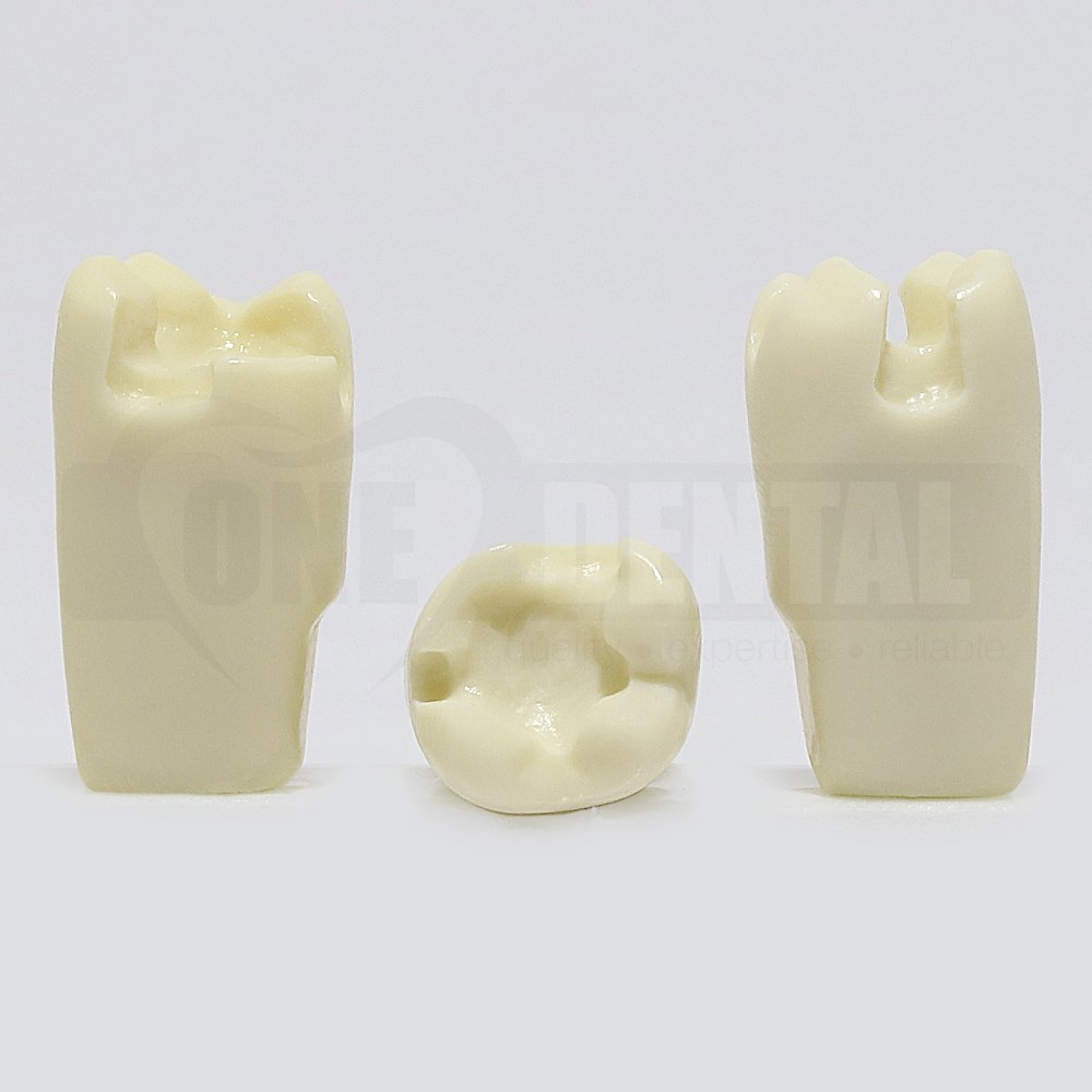 Prep Tooth 26 MOL - JK for 2010 Adult Model