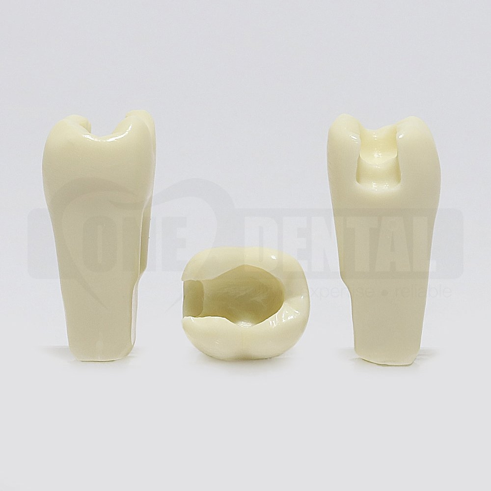 Prep Tooth 37 MO - JK for 2010 Adult Model