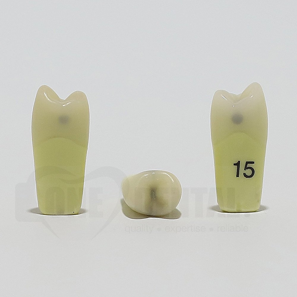 Caries Tooth 15 M+O+D for ADC Model