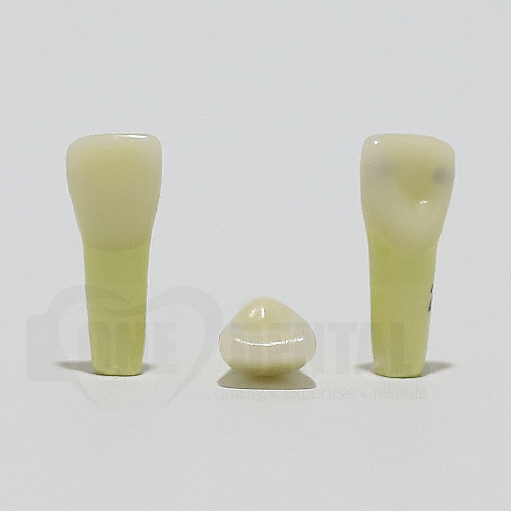 Caries Tooth 21 M+D for ADC Model