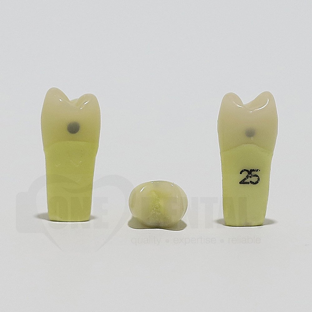 Caries Tooth 25M+D for ADC Model