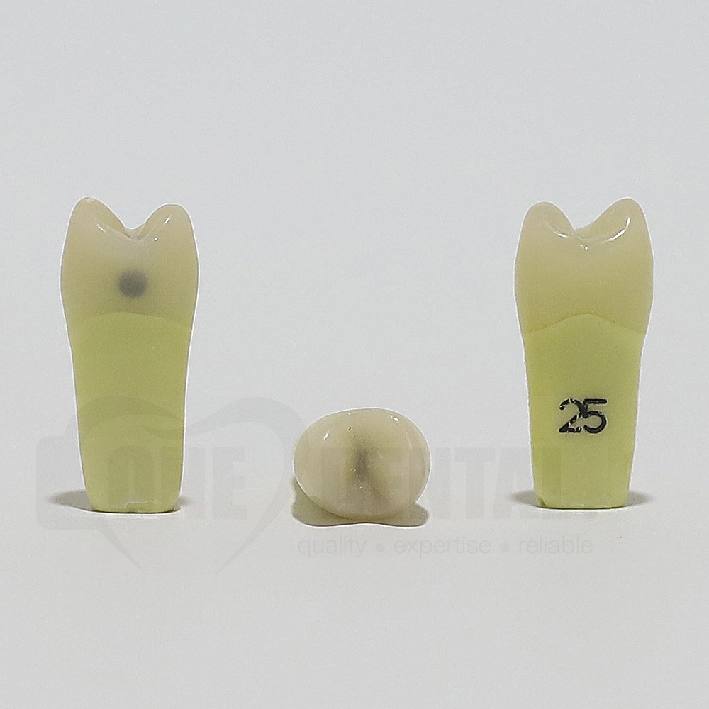 Caries Tooth 25M+O for ADC Model