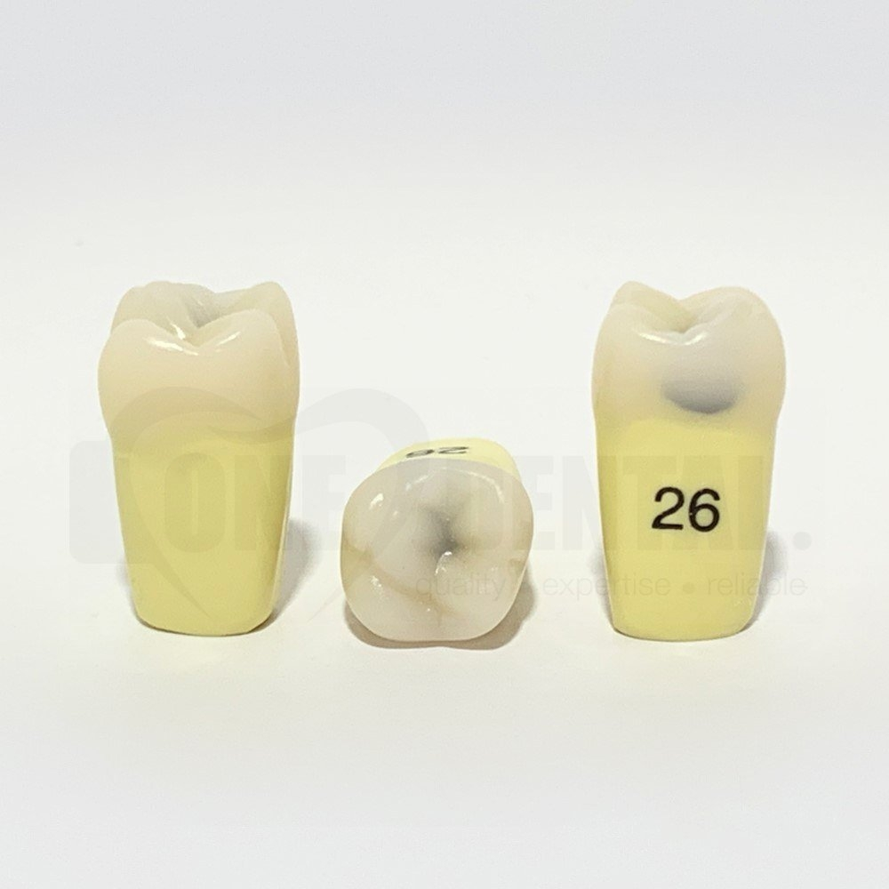 Caries Tooth 26MO Large for ADC Model