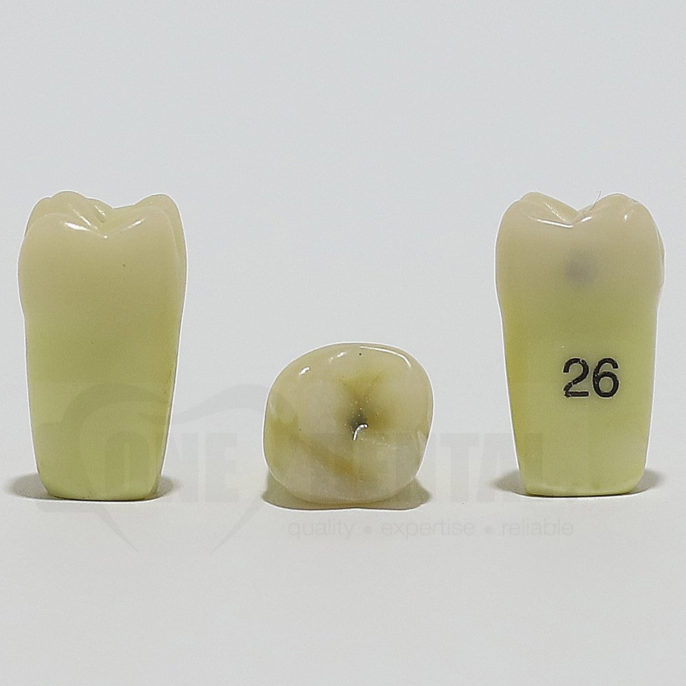 Caries Tooth 26M+O for ADC Model