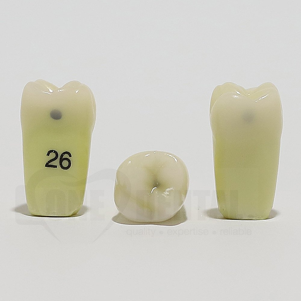 Caries Tooth 26M+O+D for ADC Model