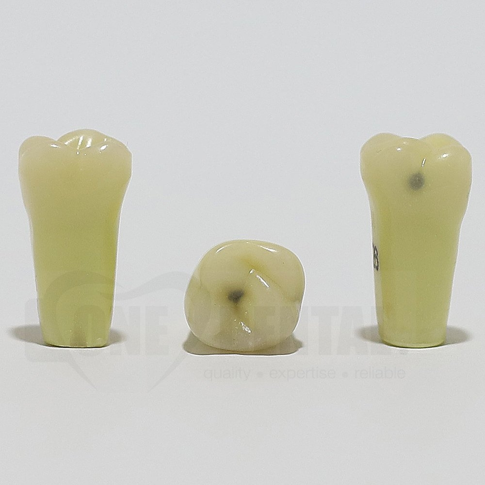 Caries Tooth 26O+L for ADC Model