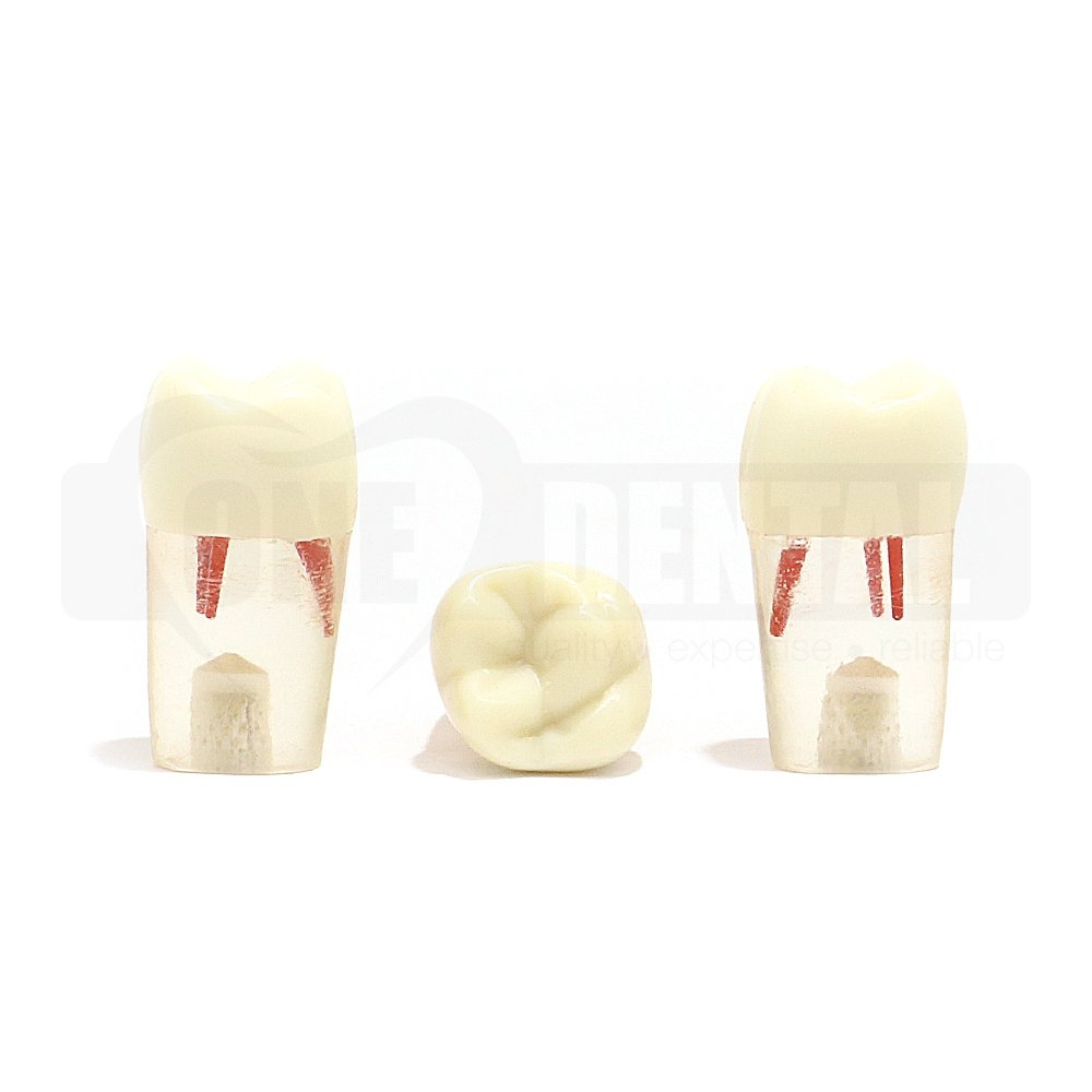 Tooth 16 Endo Short Roots Clear for ADC Adult Model