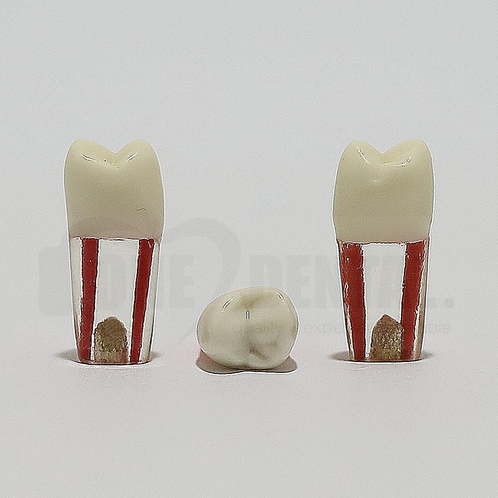 Endo Tooth 14 for ADC Model