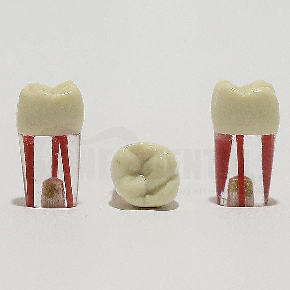 Endo Tooth 16 (3 Canals) for ADC Model