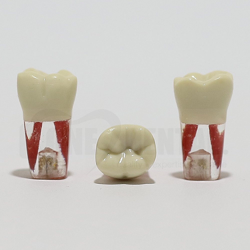 Endo Tooth 36 for ADC Model